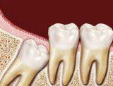 دكتور هيثم الكايد اسنان في عمان
